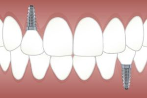 dental implants cost Pheasant Creek TX