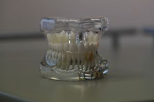 dentures Sugar Land TX