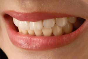 dental veneers in Smada, TX